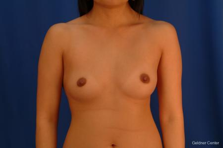 Underarm Breast Augmentation Streeterville, Chicago 2621 - Before Image 1