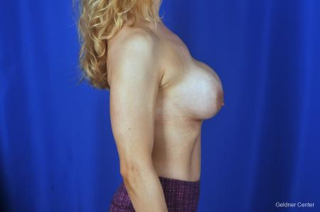 Chicago Breast Lift 2072 - Before Image 2