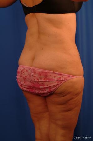 Lipoabdominoplasty: Patient 3 - After Image 3