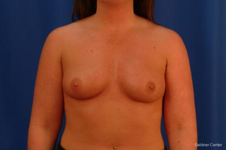 Chicago Breast Augmentation 2636 - Before Image 1