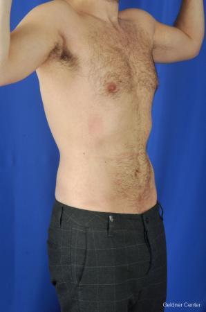 Liposuction For Men: Patient 3 - After Image 2