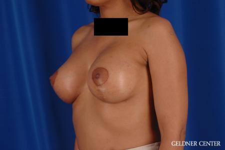 Breast Augmentation: Patient 183 - After Image 4
