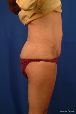 Liposuction: Patient 11 - After Image 3