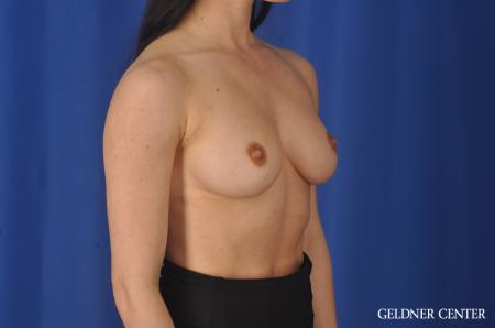 Breast Augmentation: Patient 145 - Before Image 3