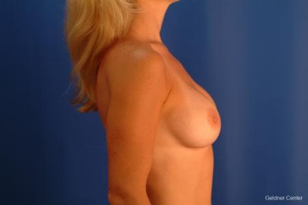 Breast Augmentation Lake Shore Dr, Chicago 2350 -  After Image 2