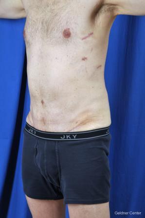 Liposuction For Men: Patient 8 - After Image 4