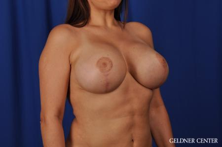 Chicago Breast Lift 5543 -  After Image 2