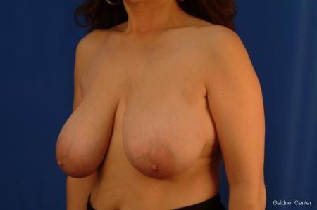 Breast Reduction Streeterville, Chicago 2289 - Before and After Image 4