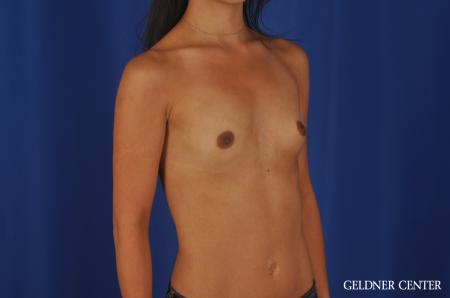 Breast Augmentation Lake Shore Dr, Chicago 5545 - Before Image 2