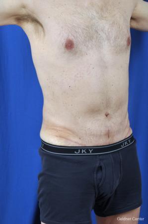Liposuction For Men: Patient 8 - After Image 2