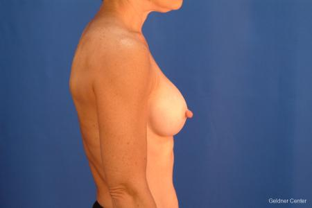 Chicago Breast Augmentation 2635 -  After 2