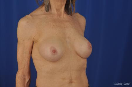 Breast Augmentation Hinsdale, Chicago 2055 -  After Image 3