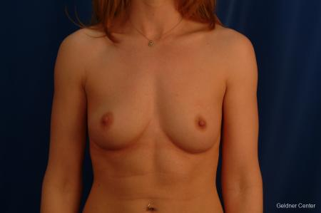 Chicago Breast Augmentation 2634 - Before Image 1