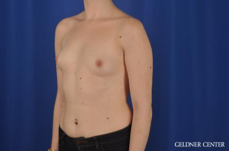 Breast Augmentation: Patient 137 - Before and After Image 4