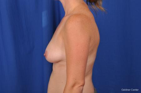Breast Augmentation Hinsdale, Chicago 2531 - Before Image 4