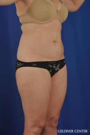 Tummy Tuck: Patient 22 - Before Image 2