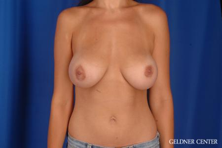 Breast Augmentation: Patient 169 - After Image 1
