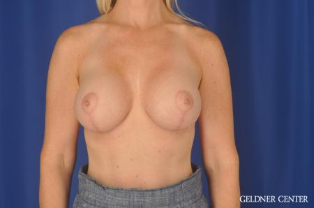 Breast Augmentation: Patient 83 - After Image 1