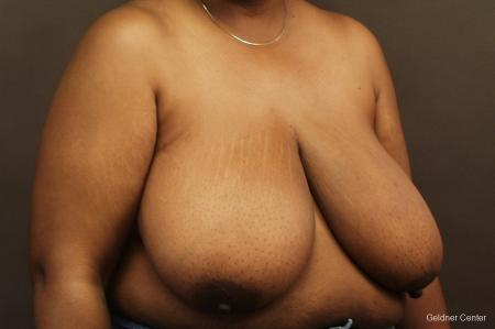 Chicago Breast Reduction 2406 - Before Image 3