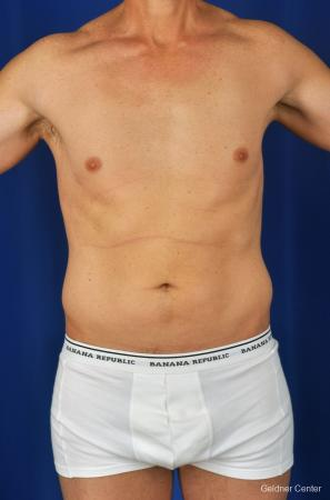Liposuction-for-men: Patient 2 - Before Image