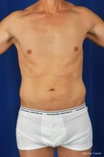 Liposuction-for-men: Patient 2 - Before Image
