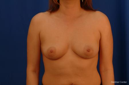Chicago Breast Augmentation 2532 - Before Image 1