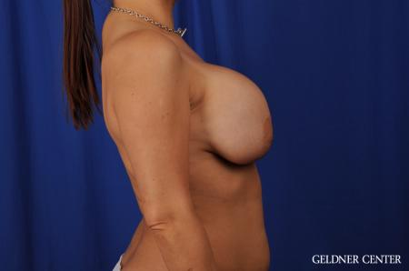 Chicago Breast Augmentation 5541 - Before Image 3