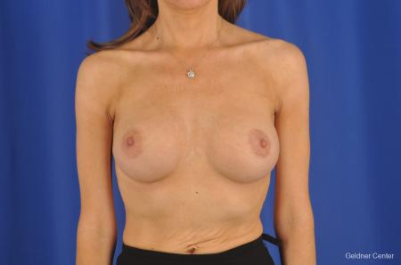 Breast Augmentation Lake Shore Dr, Chicago 2295 -  After Image 1