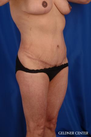 Vaser lipo patient 2629 before and after photos -  After Image 2