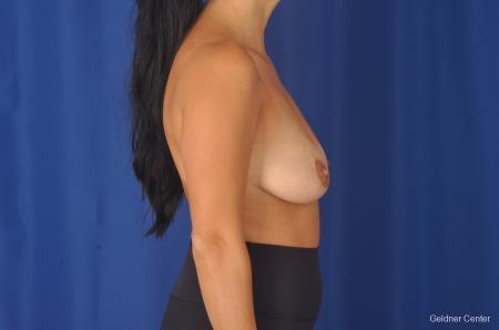 Breast Augmentation: Patient 78 - Before Image 2