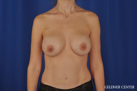 Chicago Breast Augmentation 4002 -  After Image 1