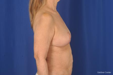 Complex Breast Augmentation: Patient 2 - After Image 3