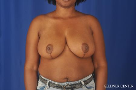 Breast Reduction: Patient 24 - After Image 1