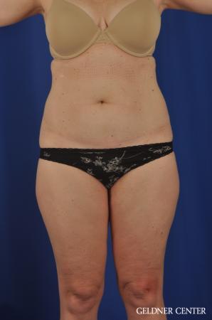 Liposuction: Patient 26 - Before 1