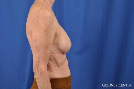 Breast Augmentation: Patient 138 - After Image 2