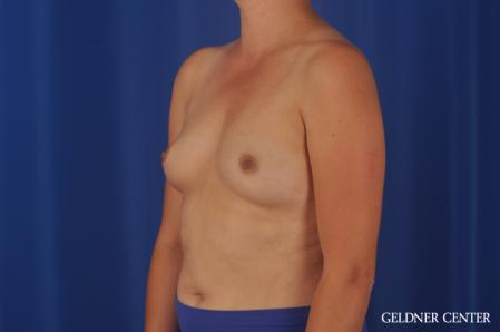 Breast Augmentation: Patient 180 - Before and After Image 4