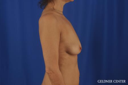 Chicago Breast Lift 11866 - Before Image 3