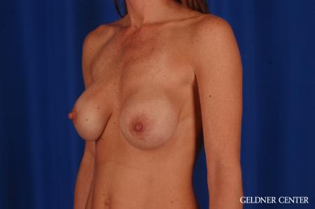 Breast Lift: Patient 46 - Before and After Image 4