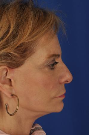 Facelift: Patient 9 - After 2