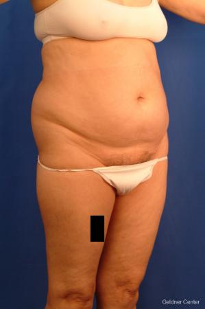 Vaser lipo patient 2536 before and after photos - Before Image 3