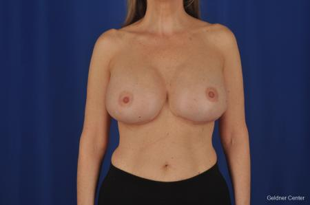 Breast Augmentation Streeterville, Chicago 2388 -  After Image 1