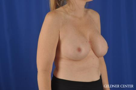 Chicago Complex Breast Augmentation 8750 -  After 3