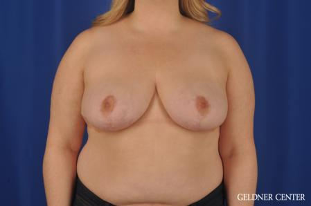 Breast Reduction: Patient 32 - After Image 1