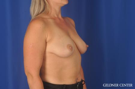 Breast Augmentation: Patient 80 - Before Image 3