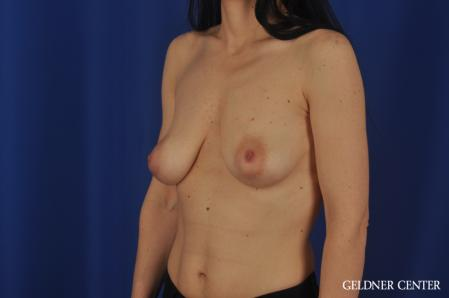 Breast Augmentation: Patient 174 - Before and After Image 4