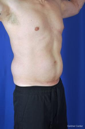 Liposuction For Men: Patient 9 - Before Image 2