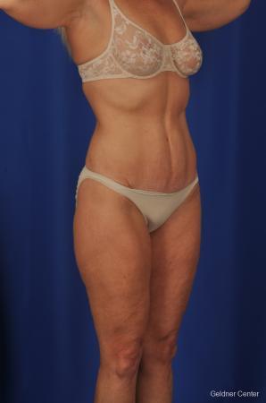 Lipoabdominoplasty: Patient 2 - After Image 2
