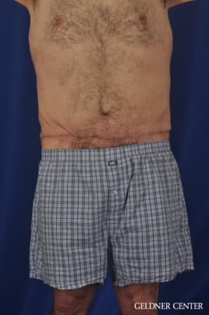 Liposuction For Men: Patient 11 - After Image 1