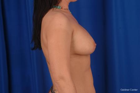 Chicago Complex Breast Augmentation 2288 - Before Image 2