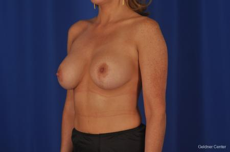 Chicago Breast Lift 2401 -  After Image 3